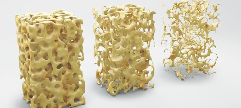 BONE UP ON OSTEOPOROSIS!