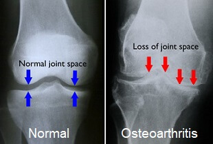 Knee Pain Physiotherapy in Gurgaon